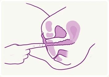 vaginisme2